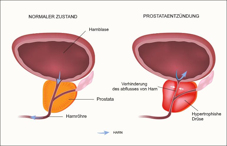 Prostatitis baden-baden